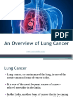 An Overview of Lung Cancer