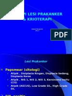 9.Terapi Lesi Prakanker & Cryo