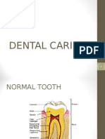 dental caries.ppt