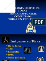 Radiologia Simple de Torax y Tac