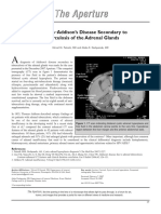 61324889-Diagnosis-Addison-s-Disease-Secondary-To.pdf