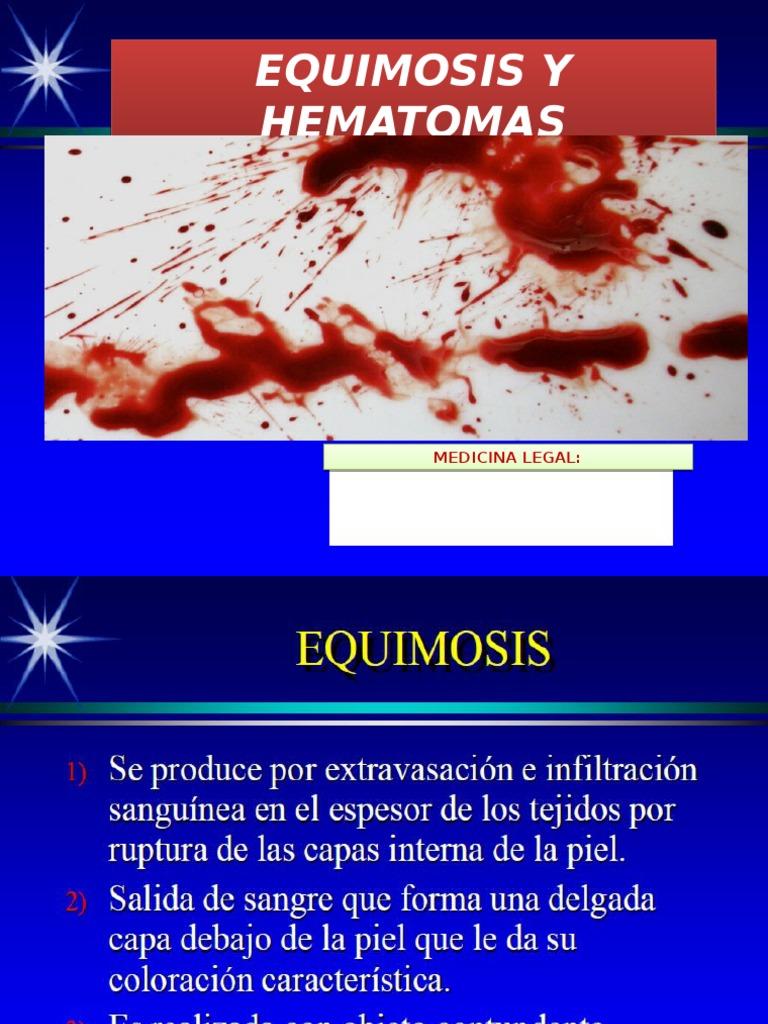 equimosis hematoma