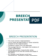 Breech Presentation 1