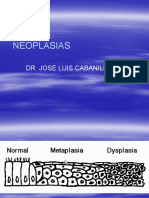 neoplasias I.pptx