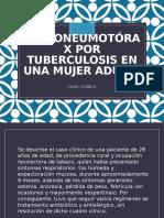 Hidroneumotórax por tuberculosis en una mujer adulta