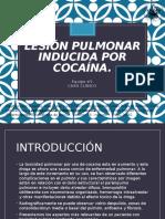Lesión Pulmonar Inducida Por Cocaína