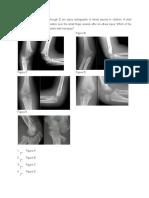 Supracondyler Fracture- Pediatric (12)
