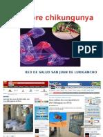 Chikungunya Junio 2014