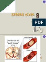 Stroke Cvd