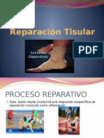 4.- Reparación Tisular