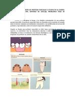PRINCIPIOS_EN_EL_DISEÑO_DE_PRÓTESIS_PARCIALES_Y_ETAPAS_EN_EL_DISEÑO