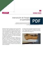 Dialnet-IntervencionDeTerapiaOcupacionalEnQuemadosCasoClin-5542454