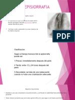 EPISIORRAFIA (1)