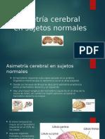 Asimetría cerebral en sujetos normales.pptx