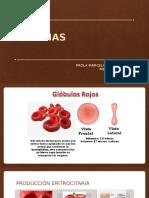 Anemia MI1