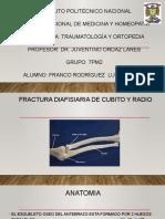 Fracturas Diafisiarias de Cubito y Radio