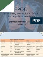 (EPOC) -