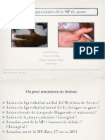 3-2 Lésions ligamentaires MP du pouce
