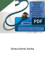 Aneurisme Aorta