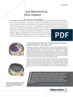 L-10011 Revision 3 02 2014 Designing and Materialising Custom Skull Implant IDEE