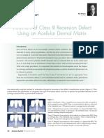 Treatment of Class III Recession BUN