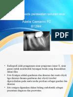 Radiografi Pada Perawatan Saluran Akar b12m4