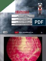 Necrosis y Coagulacion- Natural Killer