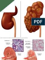 Diseased Kidney