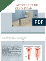 Simulacion de CA de Cervix en 2d...