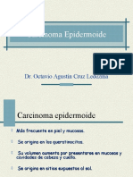 Carcinomaepidermoide 141111010201 Conversion Gate02