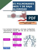 Tumores Pulmonares Benignos y de Baja Malignidad
