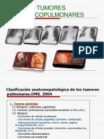 18 Cancer Pulmc3b3n Mc3a9dica