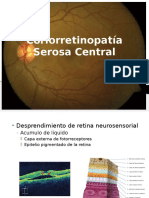 Coriorretinopatía Serosa Central