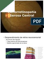 Coriorretinopatía Serosa Central.pptx