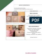 Resumen Lesiones dermicas