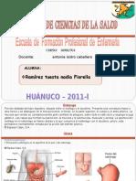 57252792-ULCERA-GASTRICA