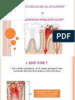endodoncia granuloma
