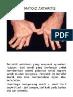 Penyuluhan Rhematoid Arthritis