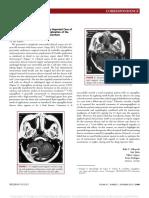 Hydranencephaly_Vs_Hydrocephalus.43.pdf