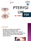 PPT Pterygium New