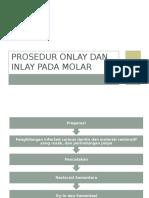 Prosedur Onlay Dan Inlay Pada Molar