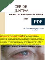 CÁNCER DE CONJUNTIVA TRATADO CON BIOMAGNETISMO MÉDICO