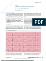 Recurrent Syncope in the Emergency Department