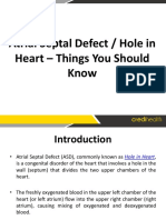 Atrial septal defect asd surgery in India