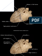 Labeled Left-Dominant Heart Prosection
