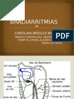 BRADIARRITMIAS FISIOPATO