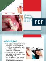 ABCESOS PERIODONTALES.pptx