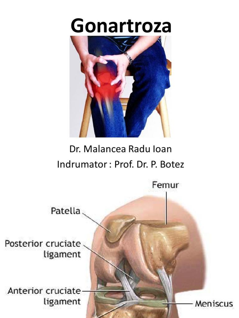 exerciții pentru durerea în articulațiile încheieturilor articulații și preparate pentru întărirea coloanei vertebrale
