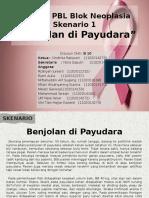 """PPT Tutorial PBL Blok Neoplasia """"Kanker Payudara"""" - Kelompok B10"""