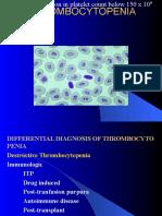 Thrombocytopenia 2